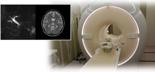 【MRI装置】